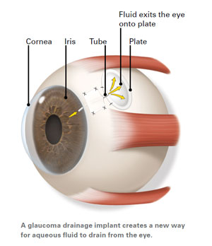 Glaucoma Treatment and surgery